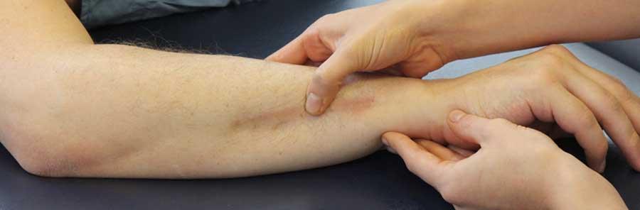 How massage can break scar tissue