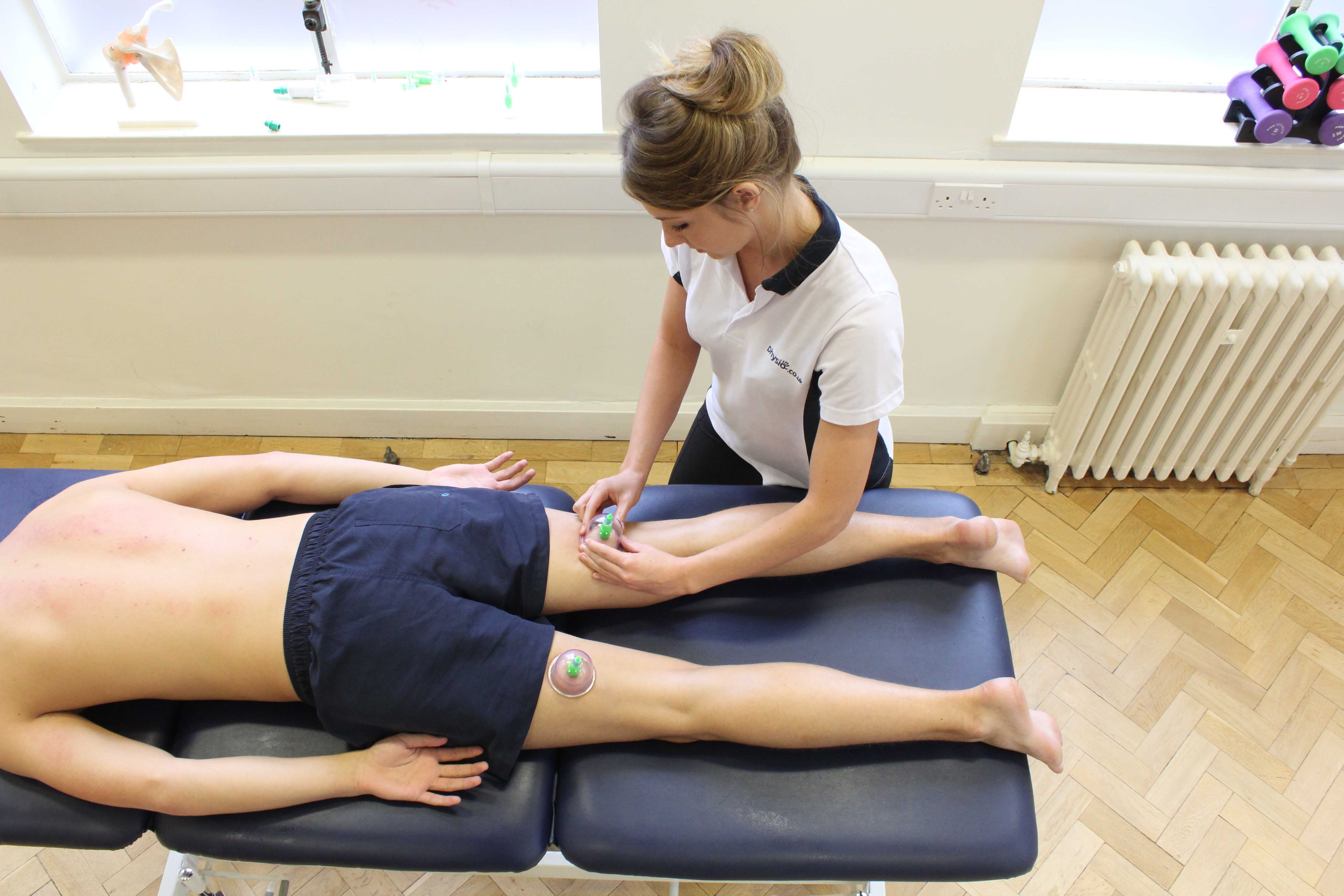 Cupping massage technique applied to the hamstring muscles by specialist therapist