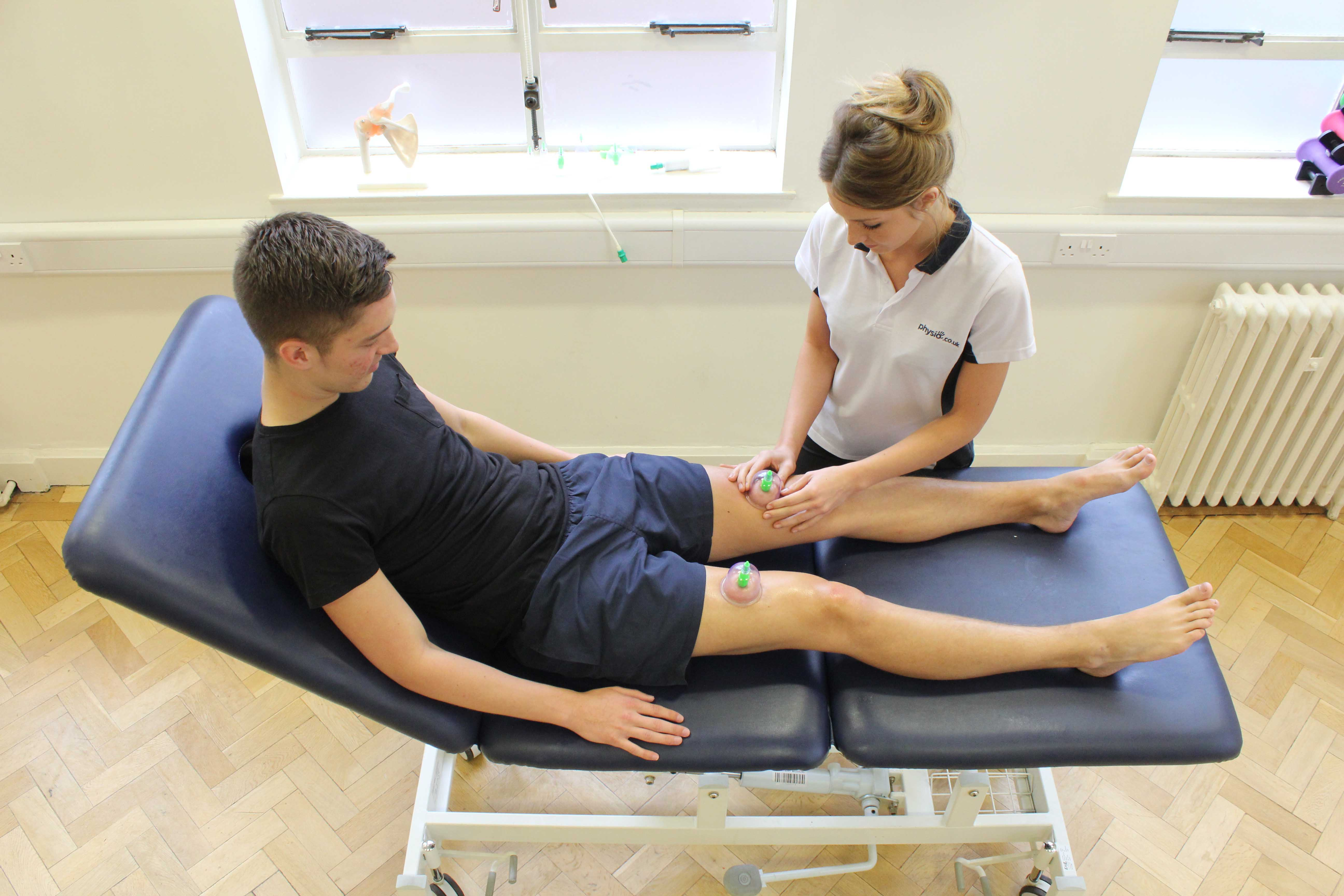 Cupping massage technique applied to the quadricep muscles by specialist therapist